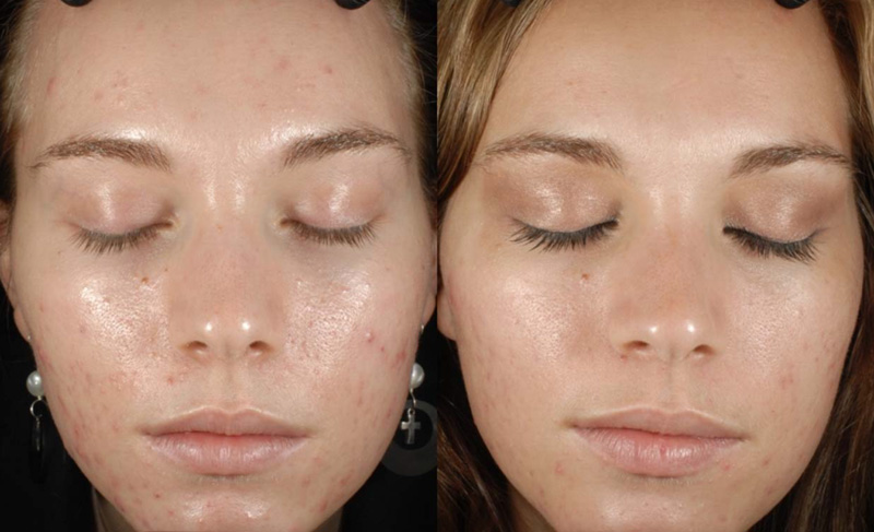 Mature facial peel before and after wap flash free