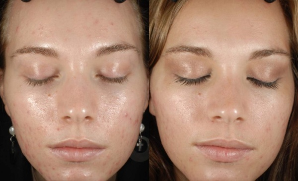 Epionce Facial Peel Ballymena Before and After