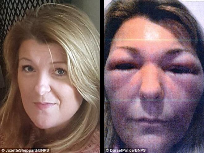Bad Botox
