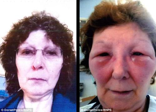 Botox Gone Wrong