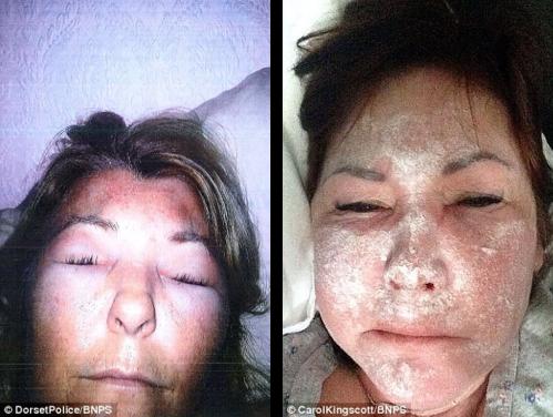 Cheap Botox